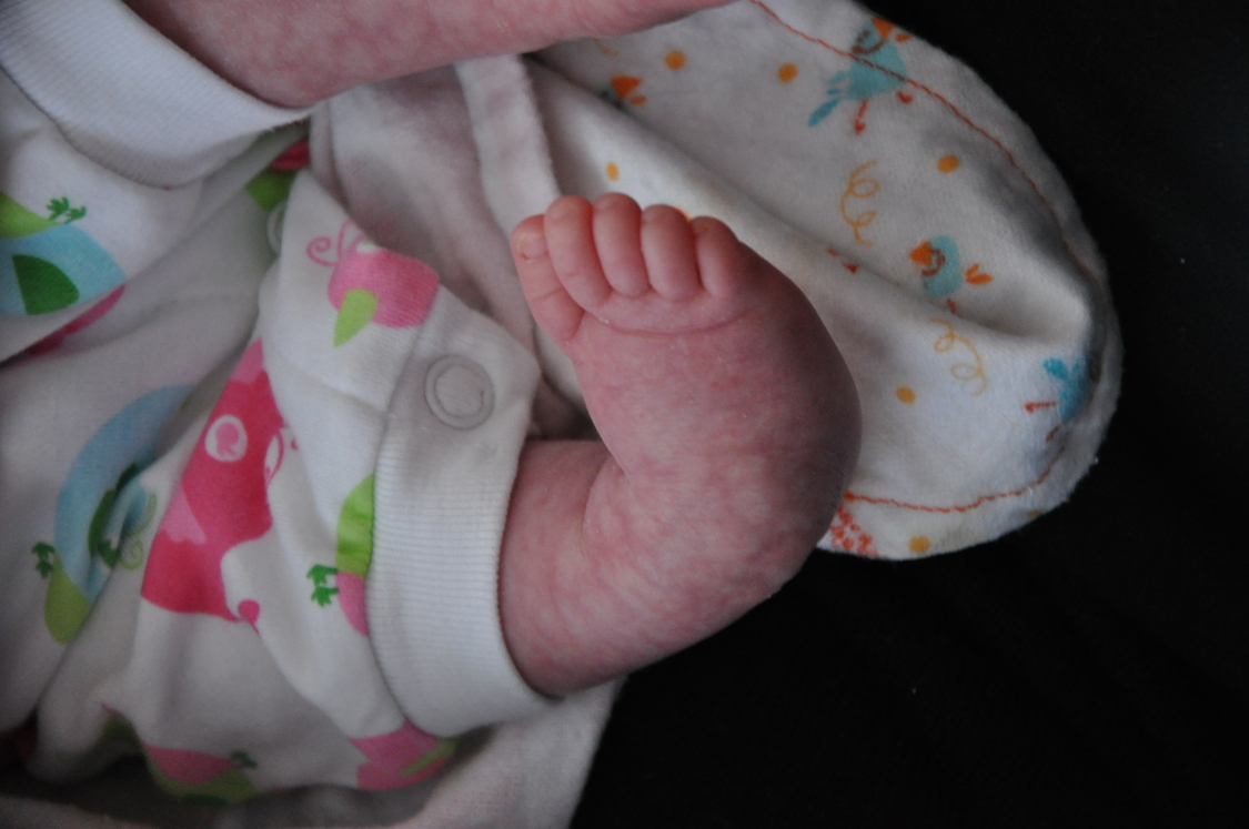 Image of an infant's club foot.