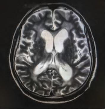MRI of the brain with hydrocephalus.