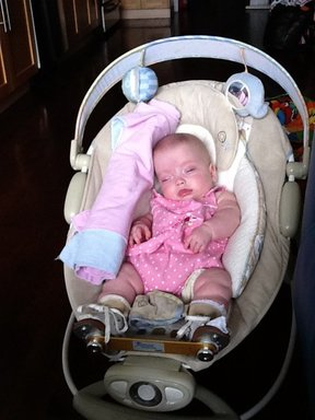 Image of infant wearing the boots and bar used as part of the Ponseti Method of treatment for club feet.