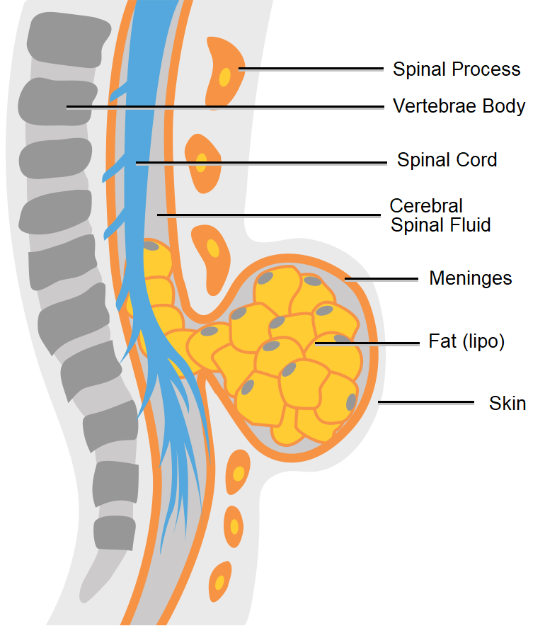 Diagram showing lipomeningocele spina bifida.