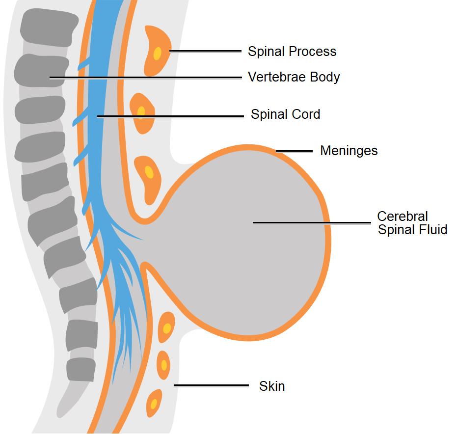 Diagram showing meningocele spina bifida.
