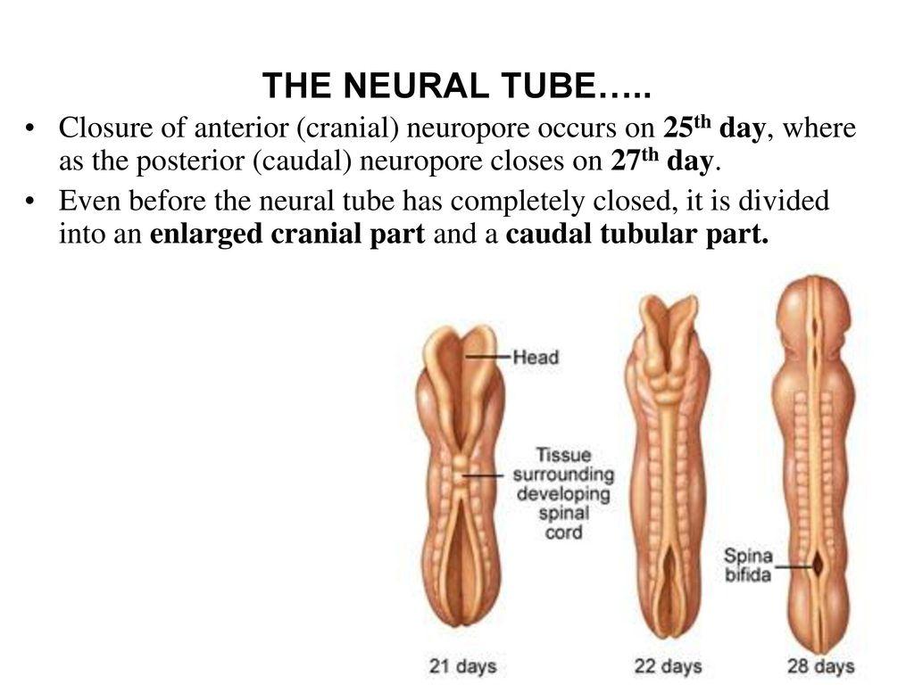 Diagram explaining the neural tube defect.