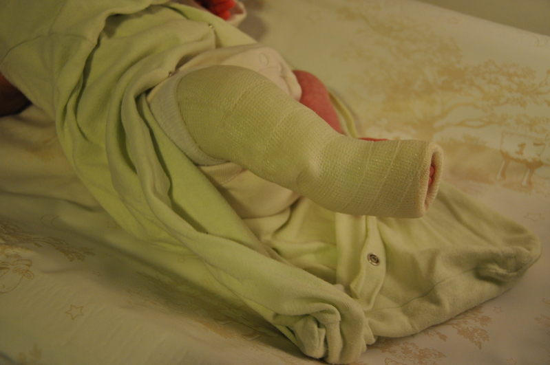 Image of child's leg in a cast, as part of the Ponseti Method of treatment for club foot.
