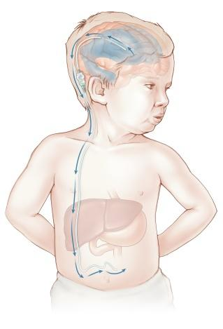 Diagram showing how a shunt for hydrocephalus works.
