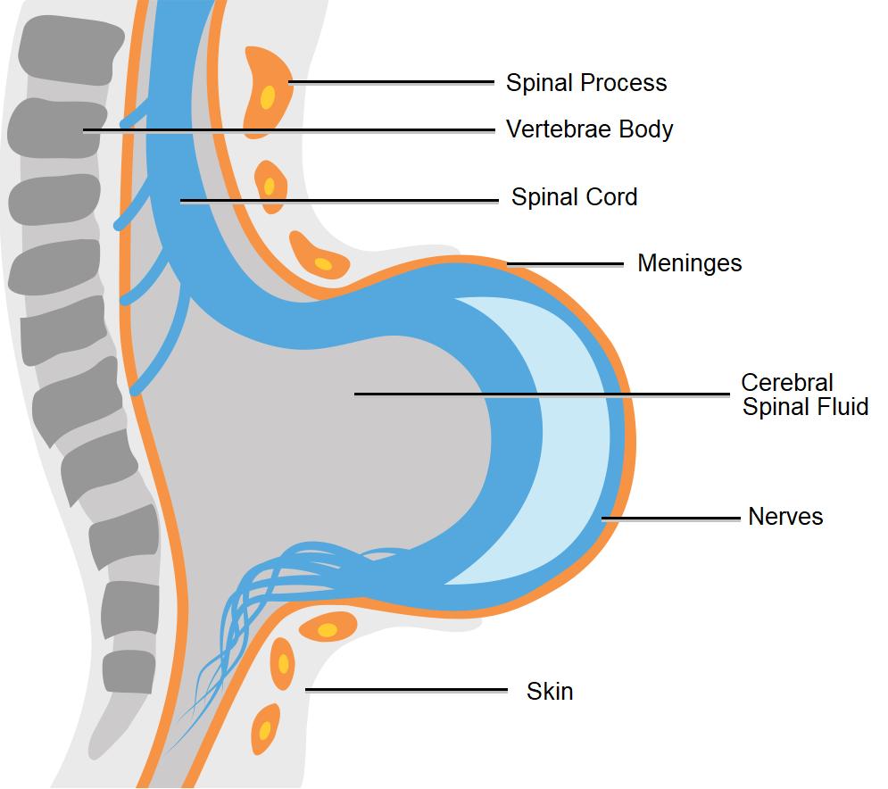 Diagram showing myelomeningocele spina bifida.