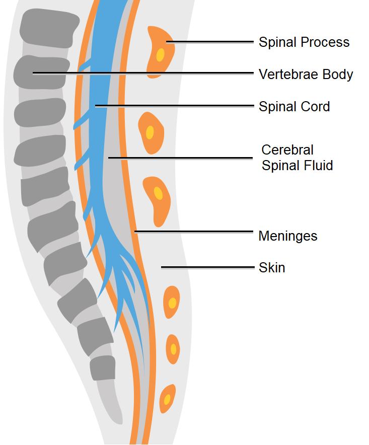 Diagram showing spina bifida occulta.